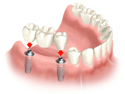 implant-vise-zuba-distalno